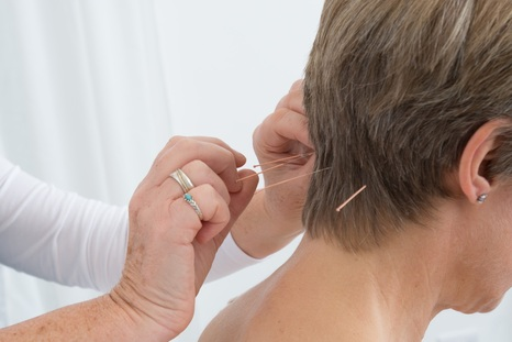 Acupuncture, Weston-super-Mare